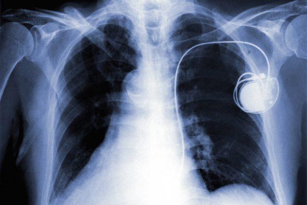 Röntgenaufnahme mit Herzschrittmacher